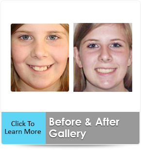 before after braces photos
