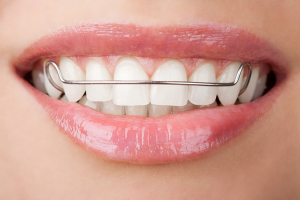 Retainers-And-Your-Smile-Harvard-MA