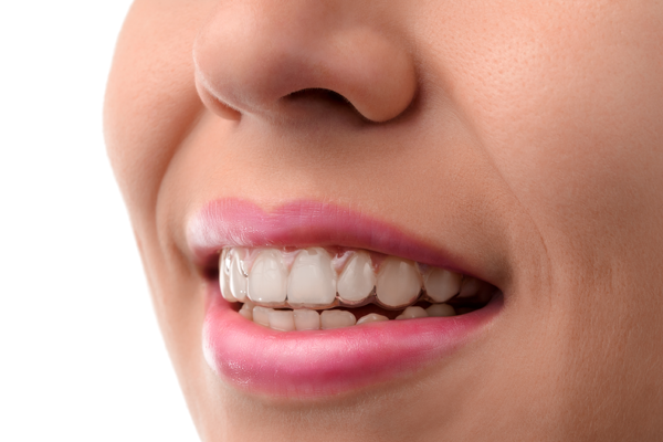 invisalign near westford ma