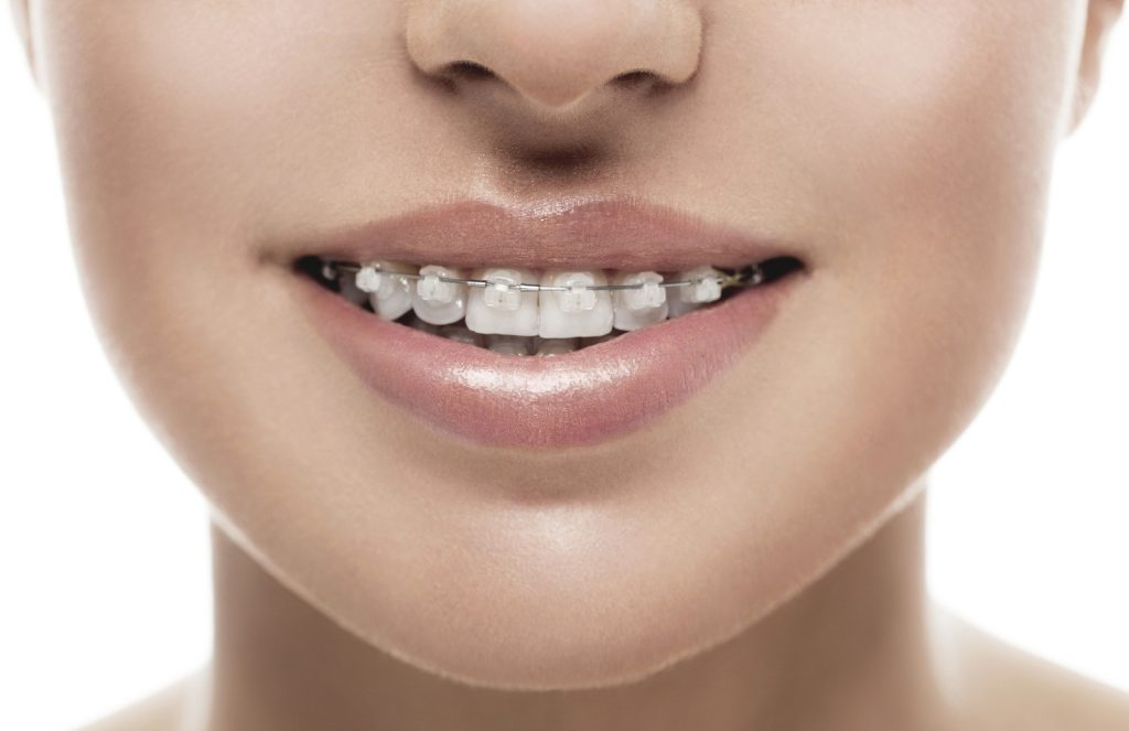 ceramic braces in groton ma