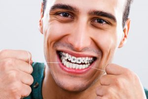 how-to-keep-braces-clean-littleton-ma