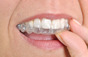 invisalign-for-adults-near-harvard