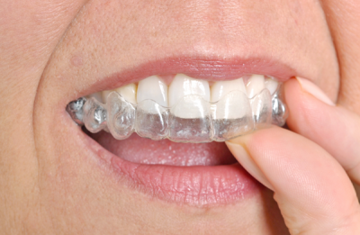 harvard ma orthodontist invisalign for adults