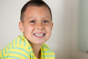 when-can-children-get-braces-worcester-county